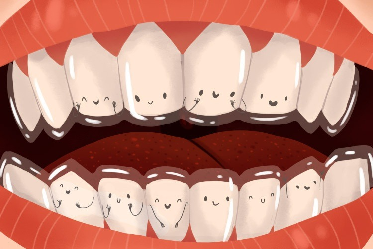 Closeup of cartoon mouth with smiling teeth wearing a clear Invisalign retainer for orthodontic treatment