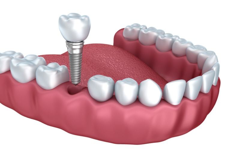 Model of the lower jaw showing a dental implant and crown